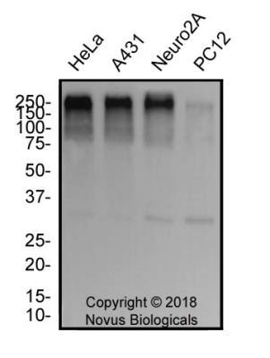 NB100 304 Novus Biologicals TP53BP1 antibody | Antibodypedia