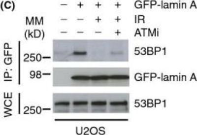 NB100 304 Novus Biologicals TP53BP1 antibody   Antibodypedia